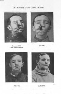 Quatre images représentant l'évolution de la reconstruction du visage d'une gueule cassée