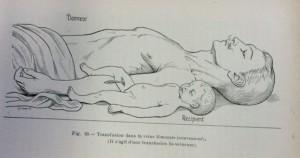 Transfusion entre un adulte et un bébé