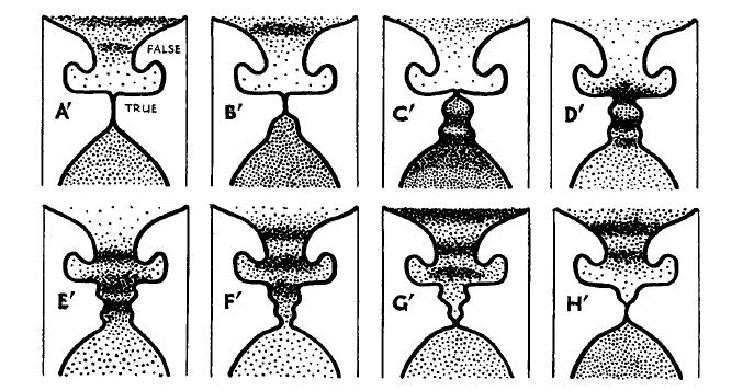 presión subglótica | Sottovoce | Página 2