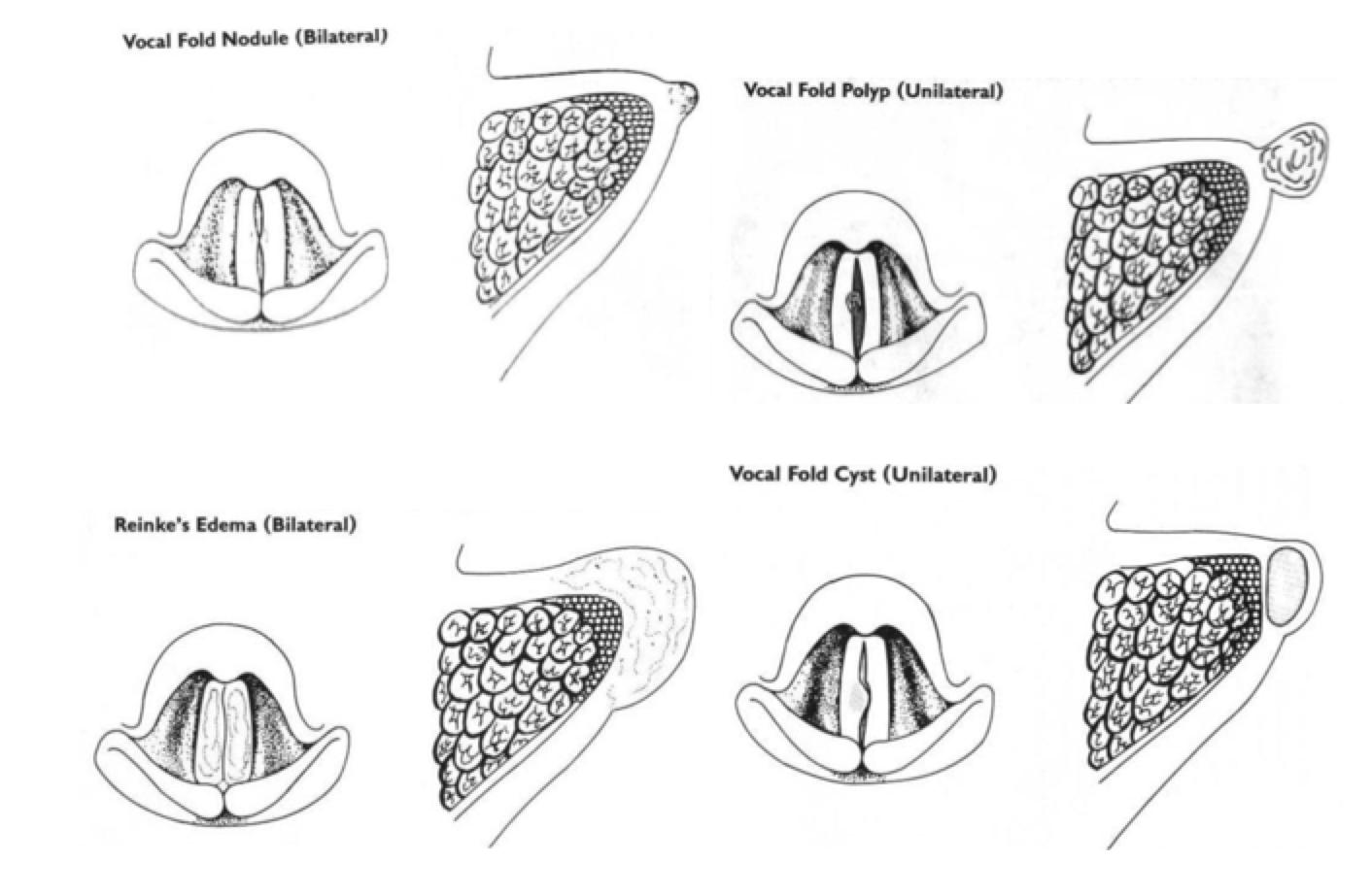 Anatomía, histología y fisiología de los pliegues vocales (I ...