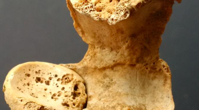 Quand la paléopathologie devient un secours précieux pour l'archéologie