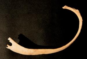 """côte à forme de """"fourchette"""" liée à une maladie héréditaire (Qatna, dans Canci et Morandi 2006, fig. 2)"""