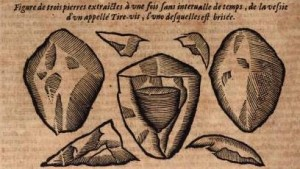 Broken bladder stones from Des monstres et prodiges (1573) by Ambroise Paré (c. 1510– 1590). From the Lyon edition of 1664.