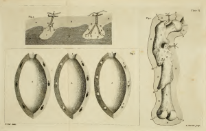 Illustration of how to make a cast of a diseased bone from Pole's 1790 'Anatomical Instructor'
