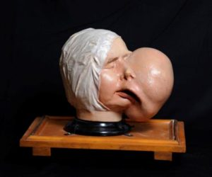 Painted plaster cast of a large fibroma of the jaw, 1830s. Courtesy Surgeons' Hall Museums, RCSEd.